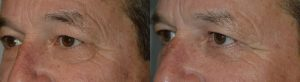 Dark Circle Treatment by Oculoplastic Surgeons in LA