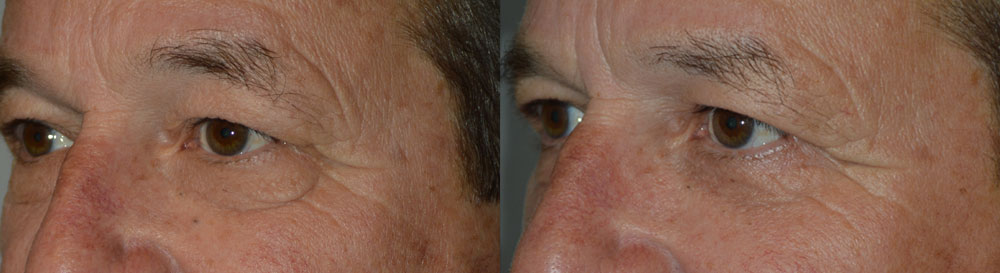 Middle age man, complained of lower eyelid wrinkles and loose skin and bags. He wanted conservative surgery to look younger and better. He underwent male lower blepharoplasty using transconjunctival approach to address under eye bags plus outside skin pinch method to remove excess skin. This aesthetic eyelid procedure was done under local anesthesia in the office, with quick recovery. Preop and 2 months postoperative photos are shown.