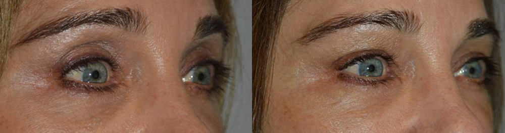 eyelid-brow-hollowness-treatment-los-angeles
