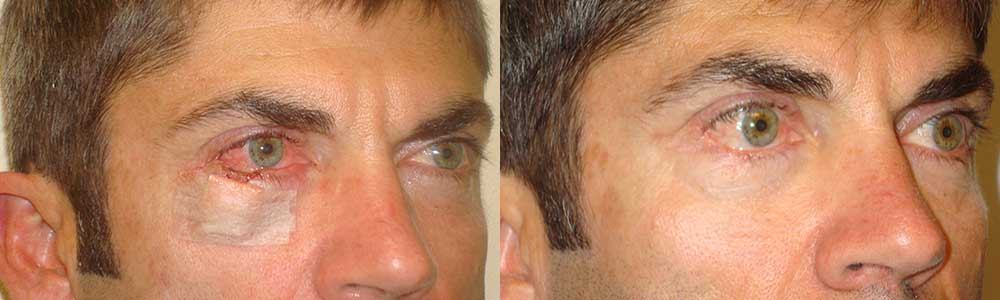 Eyelid Reconstruction Surgery Procedure