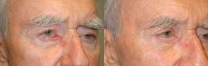 70 year old male, with segmental right lower eyelid cicatricial ectropion (eyelid rolls away, showing redness inside the eyelid), secondary to previous skin cancer surgery, underwent reconstructive eyelid ectropion repair with skin graft. Before and 2 months postoperative photos are shown.