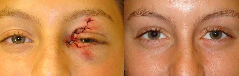 eyelid-laceration-repair-los-angeles
