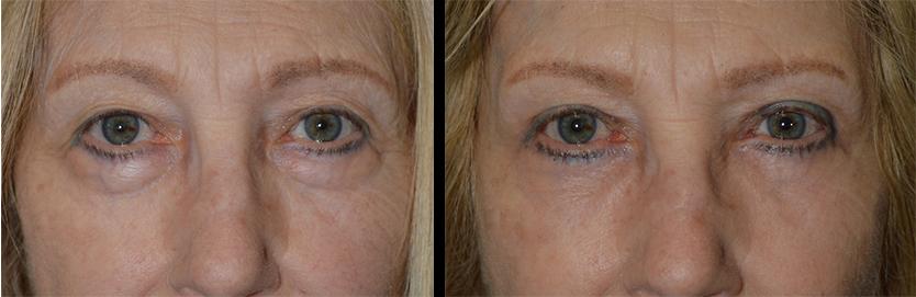 Beverly Hills Under Eye Bags Treatment