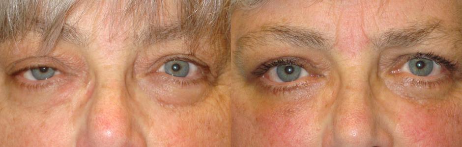 Eye Fold Corrective Surgery