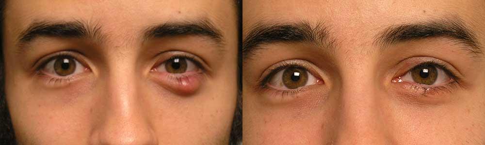 Ocular Irritation Treatment Surgery