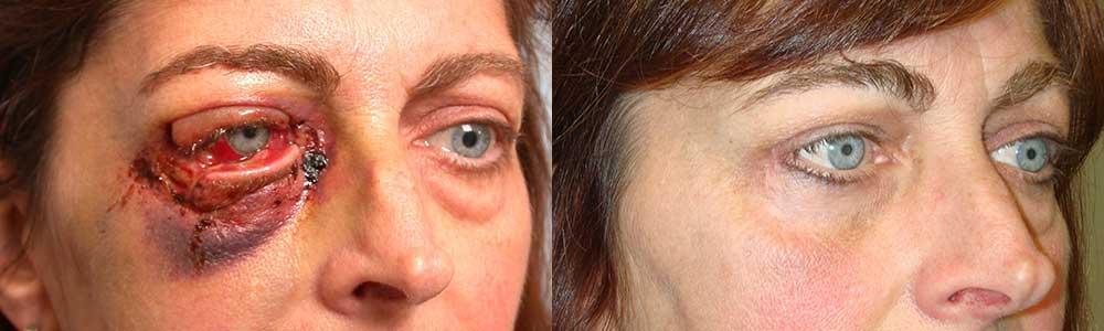 eyelid-reconstruction-repair-los-angeles
