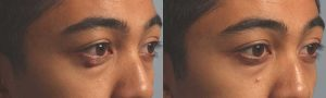 Oily Tear Gland Surgery Procedure