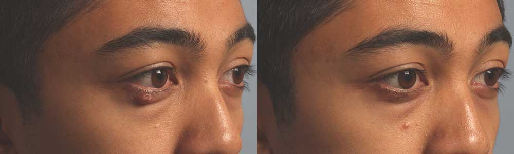 Oily Tear Gland Surgery Procedure