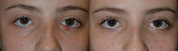 Blocked Tear Gland Treatment Surgery