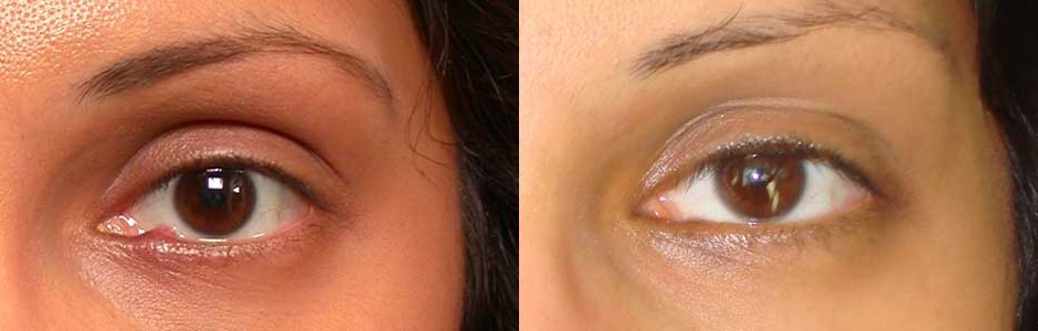 Bacterial Infection Eyelid Treatment