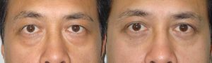40 year old Asian male, complained of under eye bags (with dark circles) and excess upper eyelid skin. He underwent cosmetic Asian blepharoplasty including Asian upper blepharoplasty with crease formation (incision method) and lower blepharoplasty (transconjunctival with fat repositioning), under local anesthesia in the office. Note natural appearing results for male Asian blepharoplasty. Preop and 3 months postoperative photos are shown.