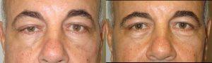 Second Eyelid Surgery by LA Doctors
