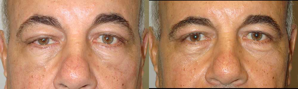 Second Eyelid Surgery by LA Doctors