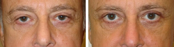 Before (left) and 6 months after (right) upper blepharoplasty, ptosis surgery, brow contouring.