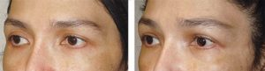 Young female, with mild to moderate upper eyelid hollowness, desired more fullness. She chose to have fat injection (instead of filler injection) in the upper eyelids and sub-brow area. Before and 3 months after eyelid fat transfer photos are shown. Note more youthFUL upper eyelid results.