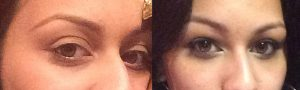 29 year old female, with relatively bulging eyes (large eyes) and surrounding hollowness around the eyes, underwent cosmetic orbital decompression (fat and some behind eyeball removed to allow the eyeball to sink back) and fat injection in upper and lower eyelids, to give more youthFUL eye appearance. Preop and 3 months postoperative photos are shown.