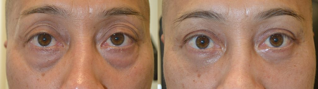 57 year old male, looking tired and older, underwent eye plastic surgery: upper blepharoplasty + lower blepharoplasty (transconjunctival with fat bags redraping and skin pinch), under local anesthesia with oral sedation in the office. Before and 3 months after cosmetic eyelid surgery procedures photos are shown.
