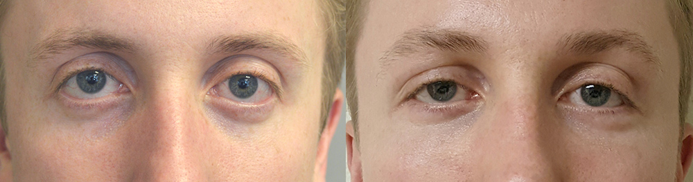 27 year old male, with inherited lower eyelid retraction with sclera show (white under colored eye area), underwent lower eyelid retraction surgery (internal scar-less approach with midface lift, eyelid spacer graft) and orbital rim tear trough implant, to give more almond shape eyes and reduce scleral show. Before and 3 months postoperative photos after cosmetic eyelid surgery are shown.