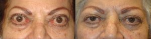 75 year old female, with Graves thyroid eye disease with bulging eyes (proptosis) underwent orbital decompression surgery to restore eye position and allow better eye closure. Before and 4 months postoperative photos are shown.