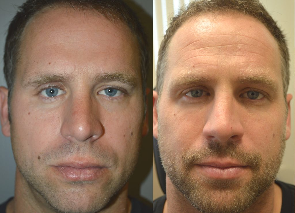 Before (left) 40 year old male, with history of multiple large orbital fractures, with significant enophthalmos (sunken eye) and cheek fracture with sunken cheek. After (right) after right orbital fracture surgery, enophthalmos (sunken eye) surgery with orbital floor implant, and cheek implant.