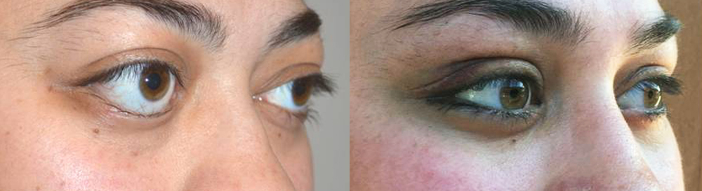 24 year old female, was very unhappy about severe bulgy eyes and lower eyelid retraction from Grave's disease, with significant change in eye and facial appearance. She also suffered from lagophthalmos (unable to fully close her eyes) with dry eyes. She underwent bilateral orbital decompression surgery (bone and fat removed from behind the eyeball to push back the eyeball) and lower eyelid retraction surgery (to raise the lower eyelids). Note improved eye appearance and function (eye is able to close now). Before and 2 months postoperative photos are shown.