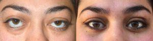 Oculoplastic Eyelid Retraction Surgery