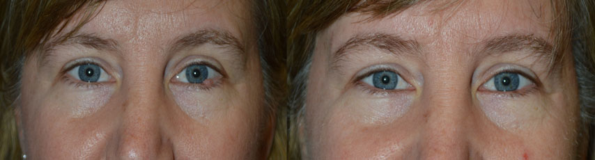 Eyelid Skin Cancer Surgery Procedure