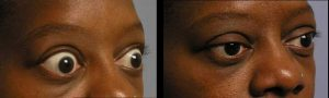 36 year old female, with Graves disease, causing upper eyelid retraction and bulging eyes, with inability to full close her eyes (lagophthalmos). She underwent bilateral orbital decompression surgery (to treat bulgy eyes) followed by upper eyelid retraction surgery (to bring down the upper eyelids), resulting in more normal eye shape and function. Preop and 3 months postoperative photos are shown.