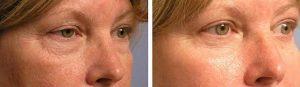 Quad Blepharoplasty Eye Bag Removal in LA