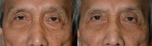 Eye Bag Treatment by LA Oculoplastic Specialists