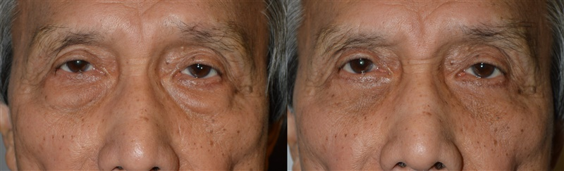 60+ year old Asian male, with eyelid aging, was only concerned about his under eye bags, making him look tired. He underwent transconjunctival lower blepharoplasty with fat repositioning, under local anesthesia in the office. Note the bags are removed, while filling the hollowness below them (tear trough area) at the same time, giving more smooth, youthful under eye area. Before and 3 months after cosmetic eyelid surgery photos are shown.