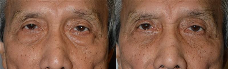 Eye Bag Treatment by LA Oculoplastic Specialists