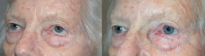 Skin Graft Cancer Treatment Surgery