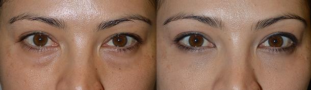 Eyelid Bag Reduction in Los Angeles