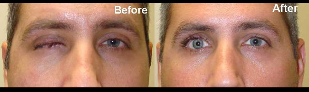Left photo shows 2 months after right eye evisceration (removal). Right photo shows after prosthesis placement.