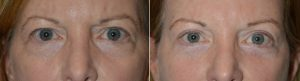 Eyelid Lift Cosmetic Procedure