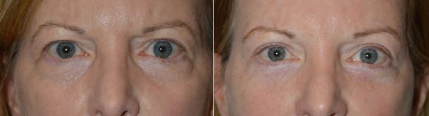 Eyelid Lift Cosmetic Procedure