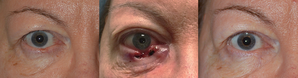 Lower Eyelid Skin Cancer Surgery