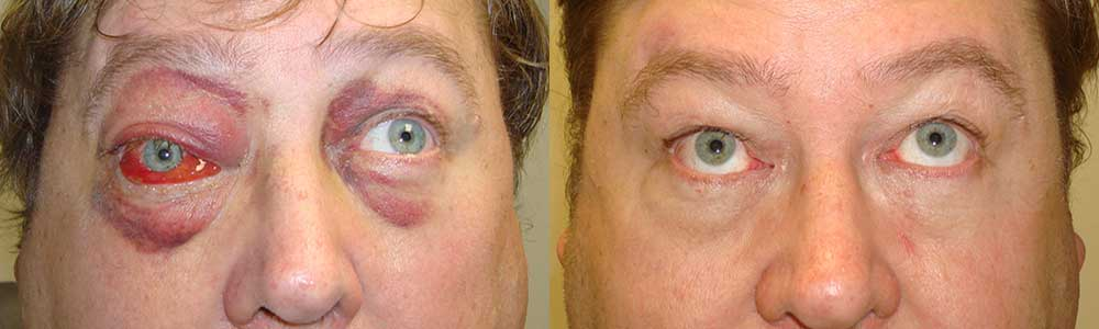 Middle age man with right orbital blow out fracture from a punch with inability to move the right eye up with double vision (diplopia). He underwent right orbital fracture repair with implant with restoration of eye movement. Preop and 6 weeks postoperative photos are shown.