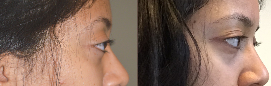 Young girl who has inherited large myopic eyes (giving appearance of protruding bulgy eyes). Note the eyeball is anterior to the brow bone (left photo). She underwent cosmetic orbital decompression (orbit bone and fat removed behind the eyeball) which allowed the large eyeball to sink bank. Note the 3 months postoperative photo (right) shows the eyeballs are now posterior to the brow bone. (In future, she would also benefit from filler or fat injection around eyes to improve the hollowness around eyes.)
