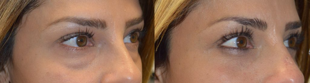37 year old female, complained of under eye bags and dark circles and looking tired. She underwent cosmetic lower blepharoplasty, using transconjunctival approach with fat repositioning, meaning the existing fat/bags were repositioned to fill the hollow area below them (dark circles), giving more youthful, rested eye appearance, without changing the eye shape or causing sunken eyes.