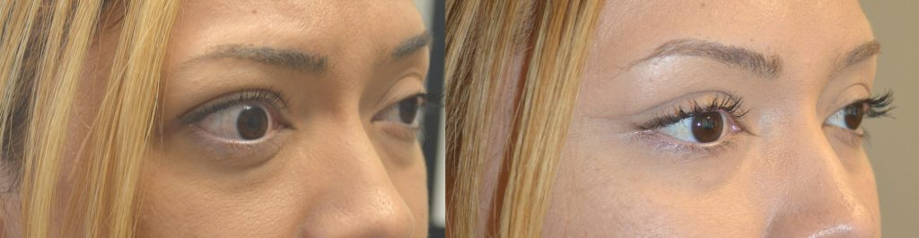 36 year old female, with Graves Thyroid Eye Disease with proptosis (bulging eyes), underwent orbital decompression surgery. Before and 3 months after oculoplastic surgery photos are shown.