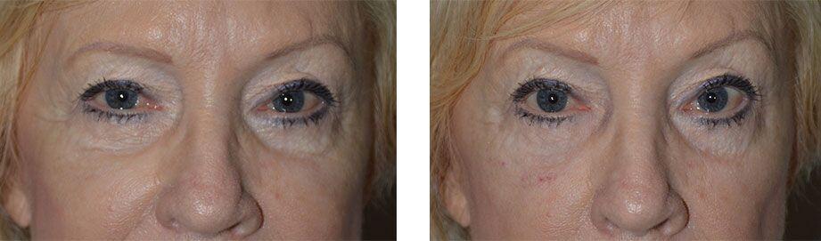 post-blepharoplasty-eyelid-injection