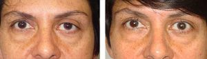 Revisional Ptosis Treatment by Los Angeles Surgeon