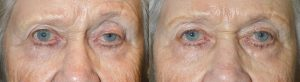 Revisional Ptosis by Los Angeles Oculoplastic Specialist
