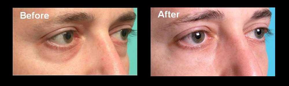 how to avoid sunken eyes