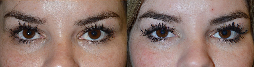 Secondary Eyelid Procedure in Los Angeles