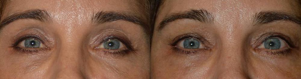 sunken-eye-filler-injection-los-angeles