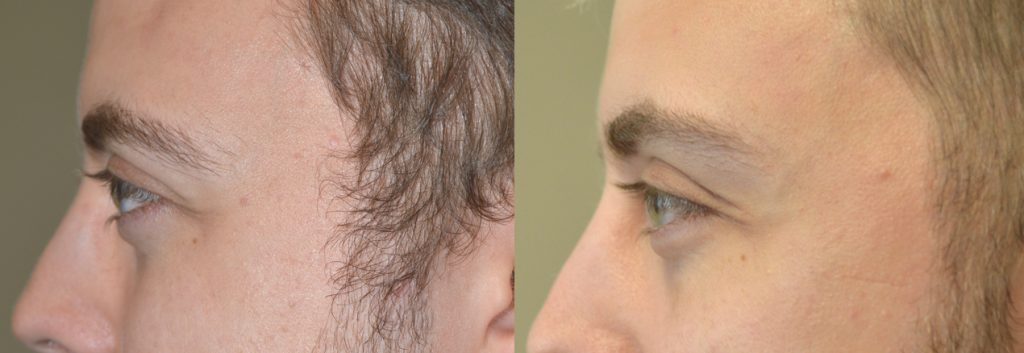 Young man, insecure about congenital bulgy eyes, underwent cosmetic orbital decompression. Preop (left) and postop (right) photos are shown. You can listen to his video testimonial on the our website testimonial page.