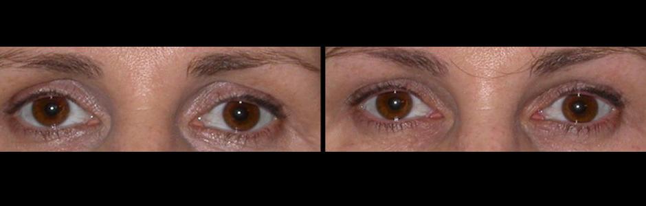 upper-eyelid-injectable-la